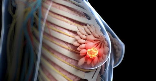 drink-breast-cancer-fi